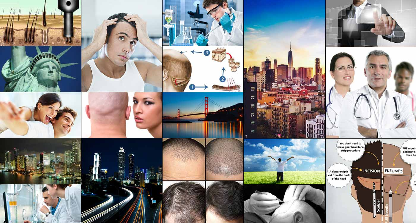 hair transplant photo gallery
