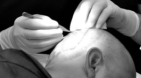 Top destinations for hair transplant in Turkey
