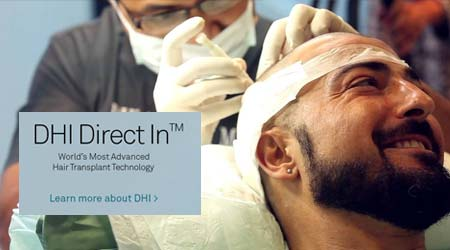 What is DHI - Direct Hair Implantation?